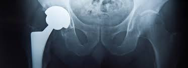 Johnson & Johnson ordered to pay $502 Million for defective hip implants