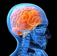 $4.5 Million Settlement in Brain Injury case after improper stroke treatment