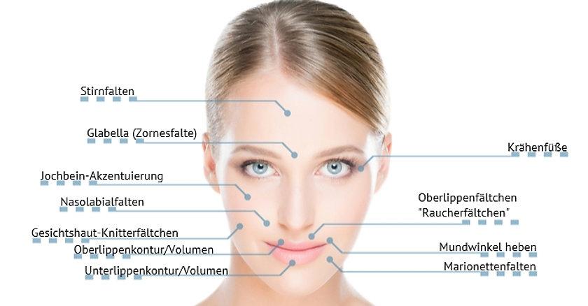 Faltenunterspritzung mit Hyaluronsäure, Jawline, Kinnaufbau, Lippenaufbau, Facial shaping Prien am Chiemsee