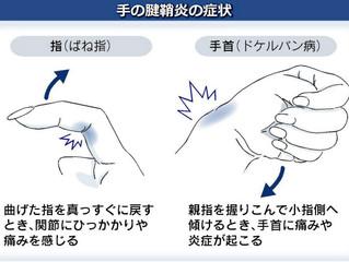 スマホ腱鞘炎にご注意下さい!