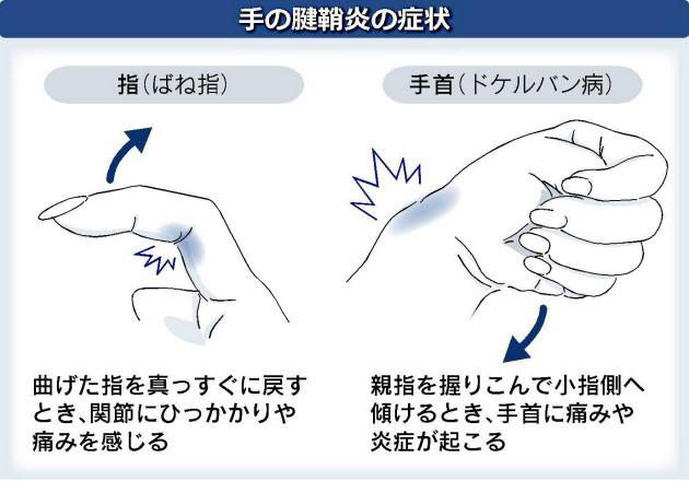 スマホ腱鞘炎の確認方法