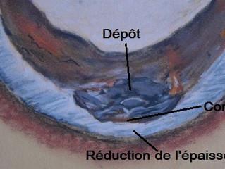 Cycle combiné Gaz : la corrosion sous-dépôt