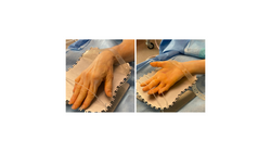 Image of HandStand™ used during surgery of the hand, wrist, and fingers