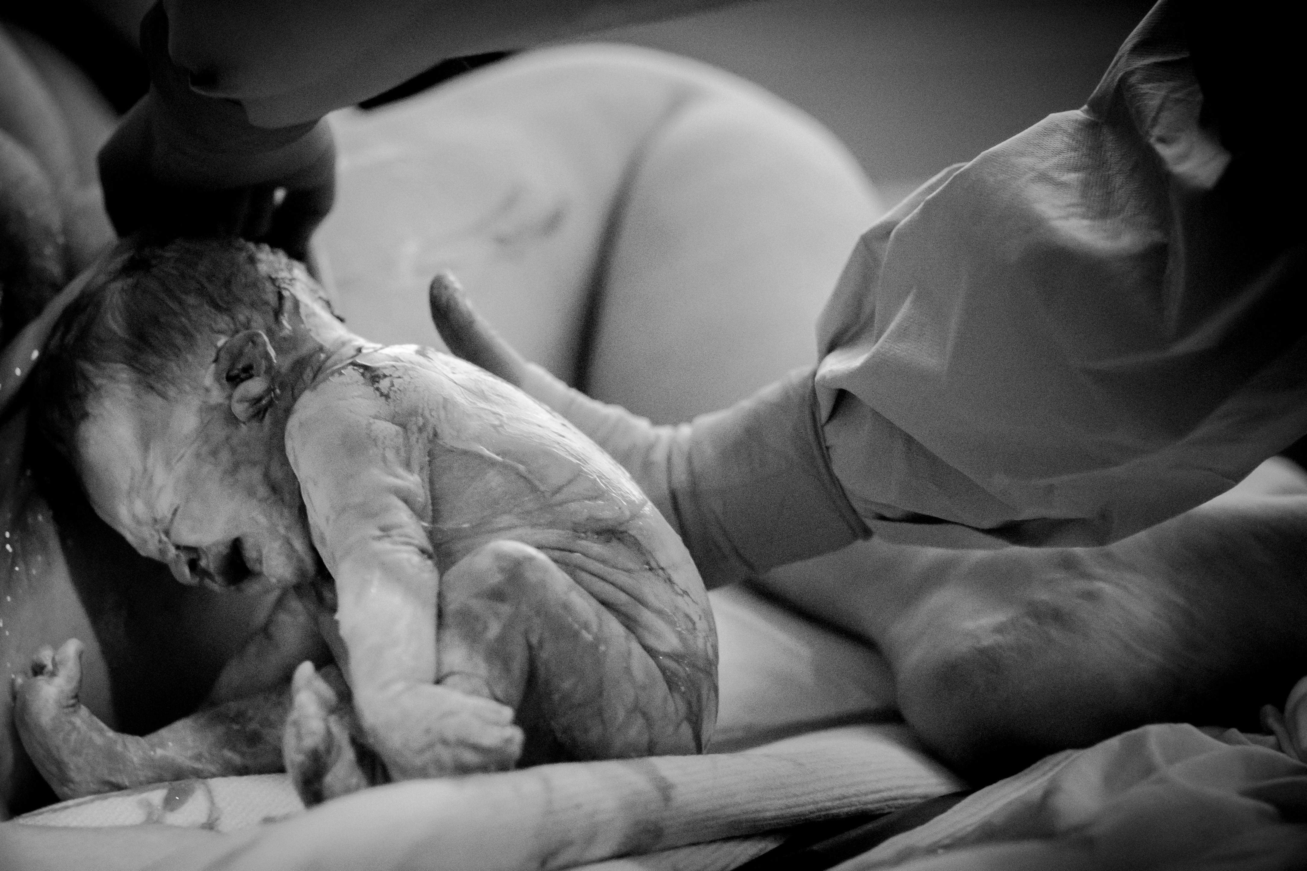 Labor & Birth Photography
