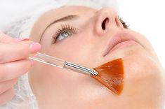 Medical Skin Peels.jpg