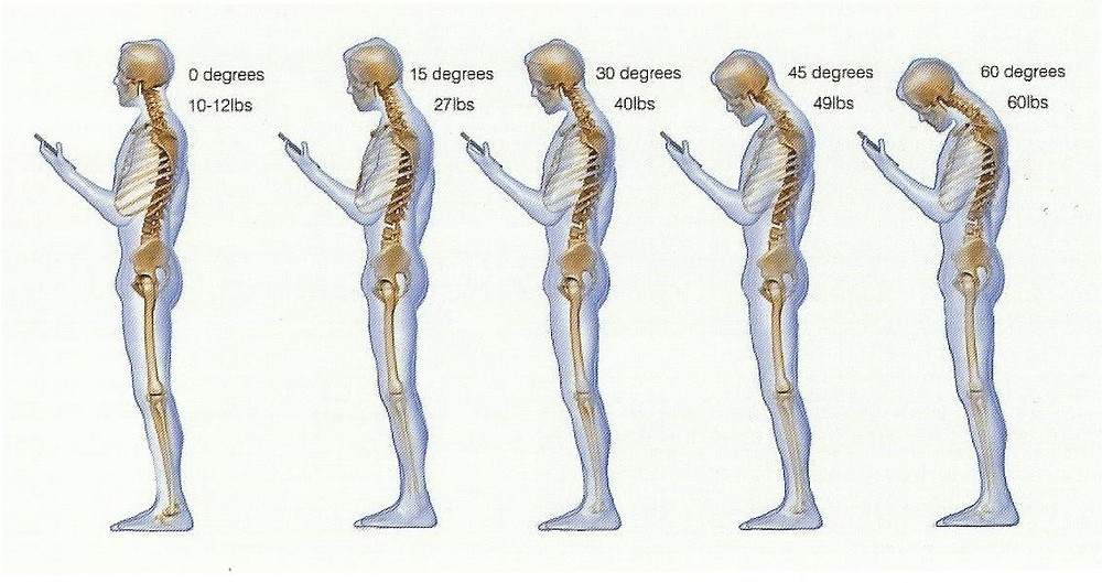 Postural Concerns with Mobile Phones Illuminate - Spinal Research Foundation - 2015 Vol 2