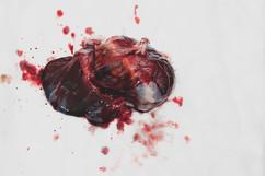 Zavien's placenta