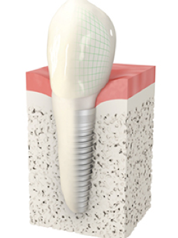Smile And Eat With Confidence With Dental Implants
