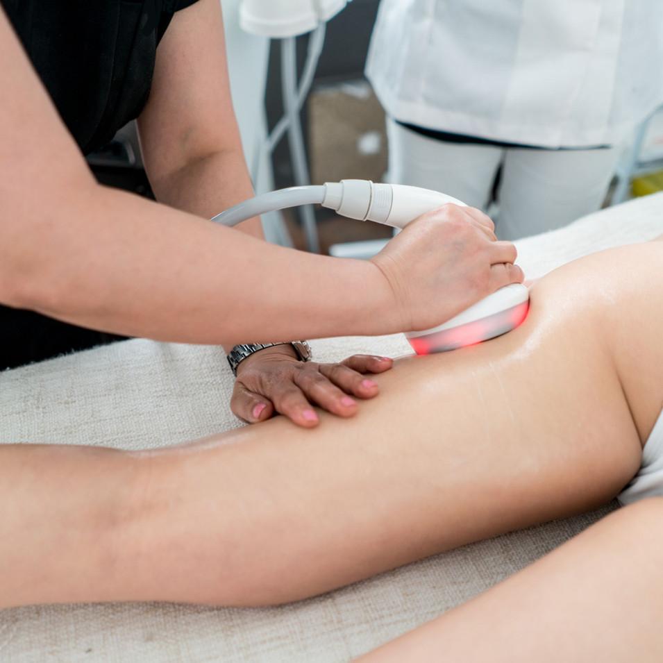 woman-getting-an-anti-cellulite-lase-tre