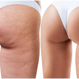 No59 Skin and Beauty Cellulite Treatment