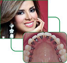 lingual invisible braces.jpg