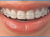 Tooth Colored Braces.jpg