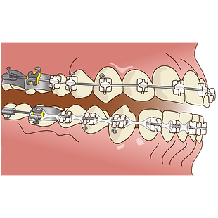 orthodontics047.png