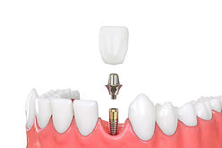 implant and crown