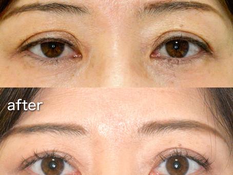 眼瞼下垂。修正手術の前に必ず知っておくべき、3つの質問とは?