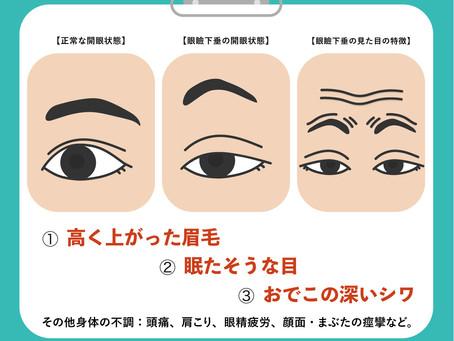 見た目と機能と眼瞼下垂治療
