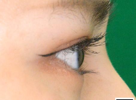 目が大きくなる?逆まつげを手術で治す前に知っておくべき美容的メリット