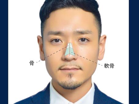 写真で見る斜鼻の修正手術の流れ 医者選びで失敗しないために