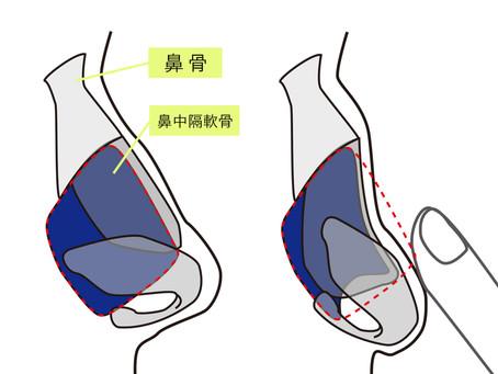 鞍鼻あんび変形を治す。斜鼻手術や骨折のトラブル知ってますか?