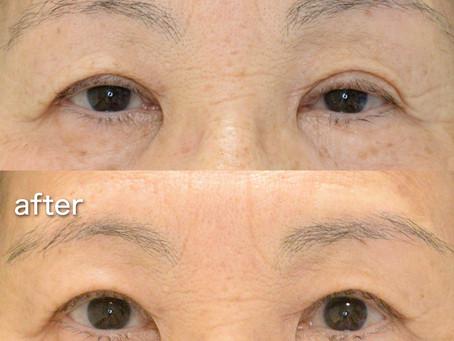 眼瞼下垂の全切開手術治療 〜お写真で見るダウンタイム〜