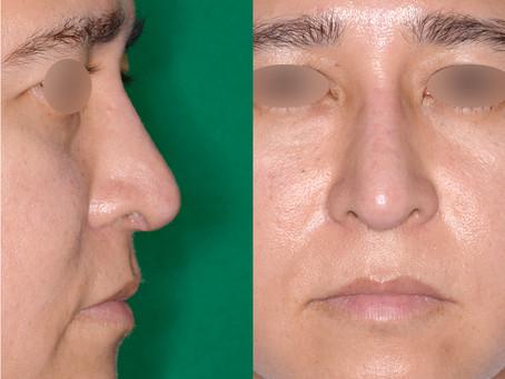 シリコンで失敗した鼻整形のよくある修正パターン5つを写真で見る