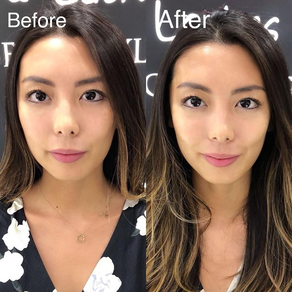 Hifu Before & After | Princessbrows