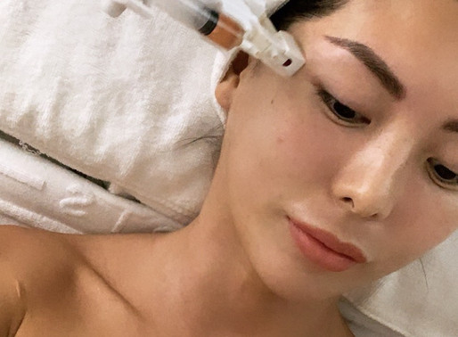 [Hong Kong] Stem cell microneedling facial - photos included!