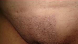 Implante de pelo en pubis