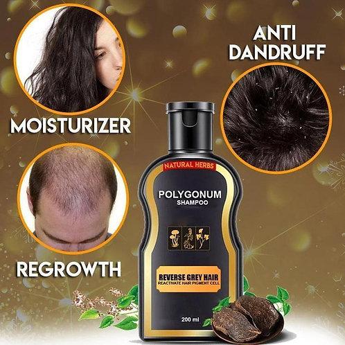 Natural & Organic Herbal  Hair Loss  Treatment Shampoo for Men & Women