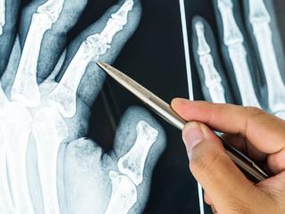 Dor nas articulações pode ser artrite reumatoide