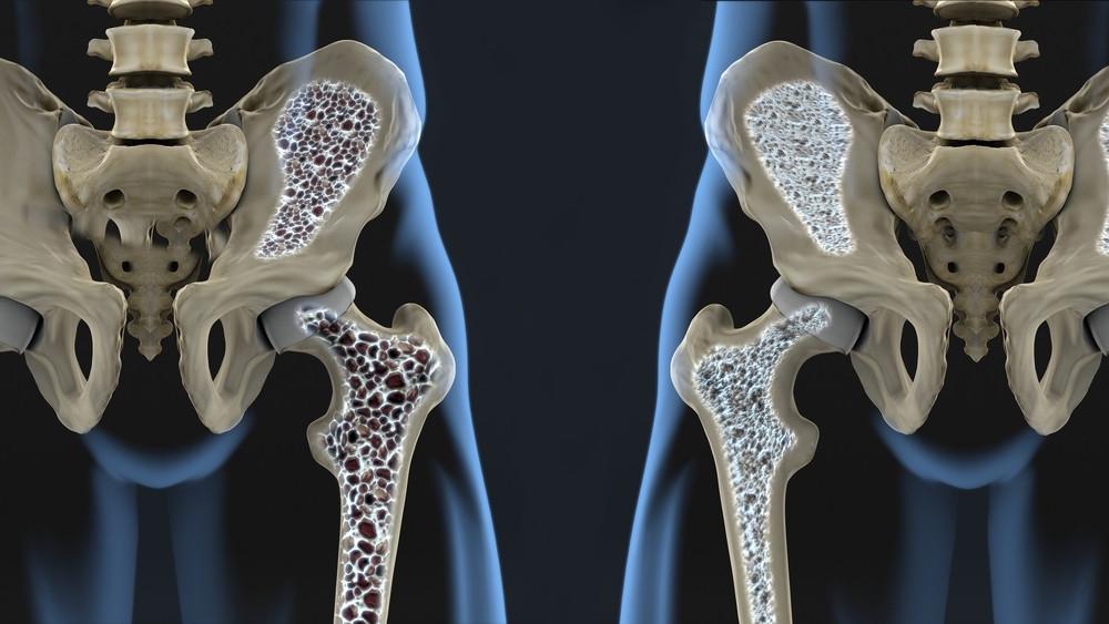osteopenia-osteoporose-diferencas