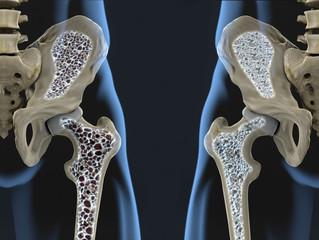 Osteopenia ou Osteoporose? Qual a diferença?