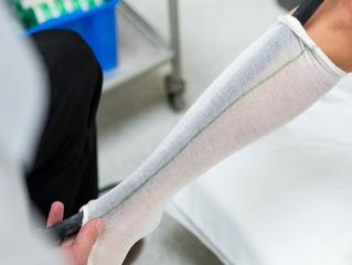 Alongamento ósseo: correção de deformidades e ganho estético