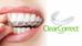 Ali si želite popolne zobe?