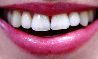 Zakaj je redno čiščenje zobnega kamna tako pomembno?