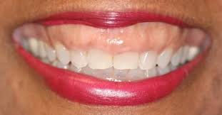 Gummy+Smile-1920w.jpeg