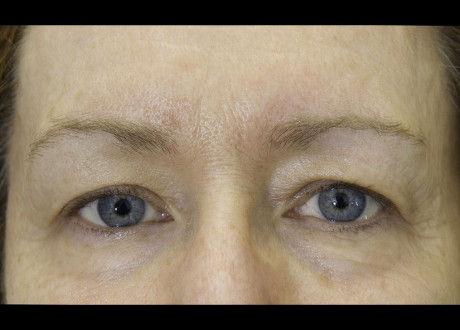 BTL_Exilis_PIC_4-After-eyes-female-Harts
