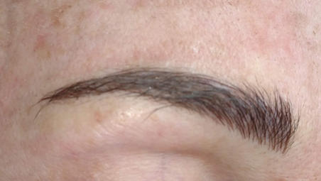 Microblading in Eyebrow Hair
