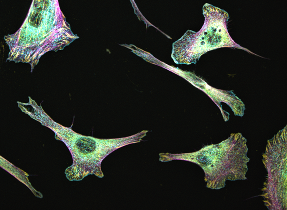 MEF cells stained with cortactin