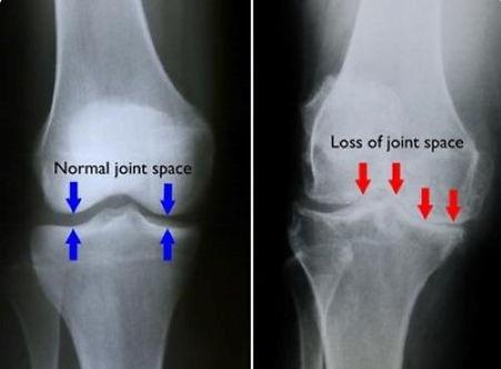 knee xray.jpg
