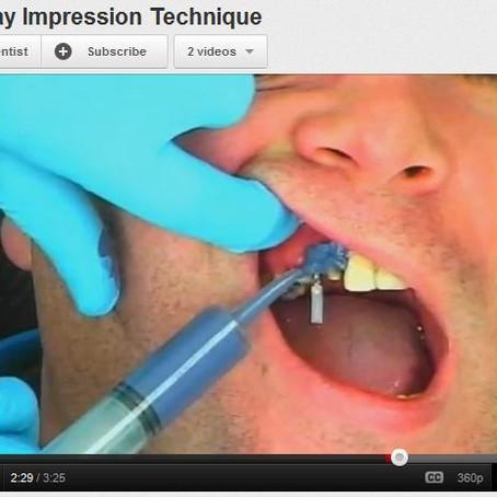 Video: Open Tray Impression Technique