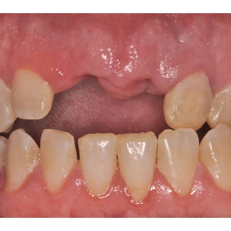 8 Photos You Need for Cosmetic Dentistry