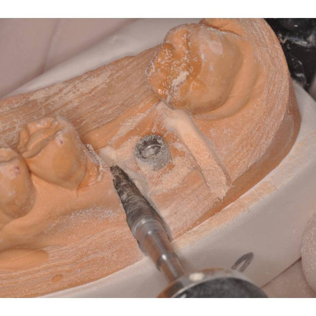 3 Easy Steps to Reduce Your Implant Overhead
