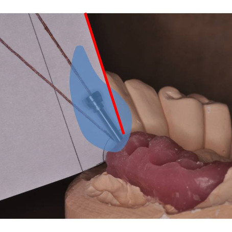 3 Steps to Selecting Angled Implant Abutments