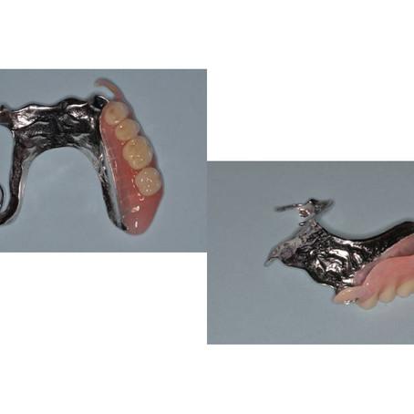 Esthetic RPD Clasp Design for Anterior Teeth