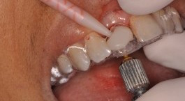 Gorgeous Single Implants in the Esthetic Zone: The Secret is a Customized Temporary!