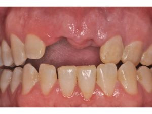 Only with retraction can we appreciate the several cosmetic and occlusal factors at play in this case.