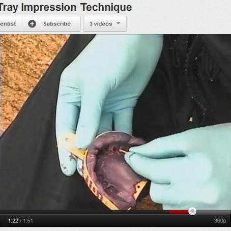 Video: Closed Tray Impression Technique