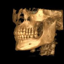 The Awesome Future of CAD/CAM Dentistry
