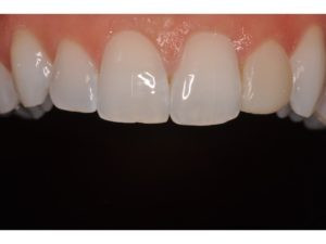 """The left lateral incisior will receive a veneer.  Note all of the """"personality"""" on the adjacent incisors.  We have craze lines, small incisal chips, and other details that the lab technician can emulate.  Bonus points for using a contrastor to black out the background and help show translucency."""